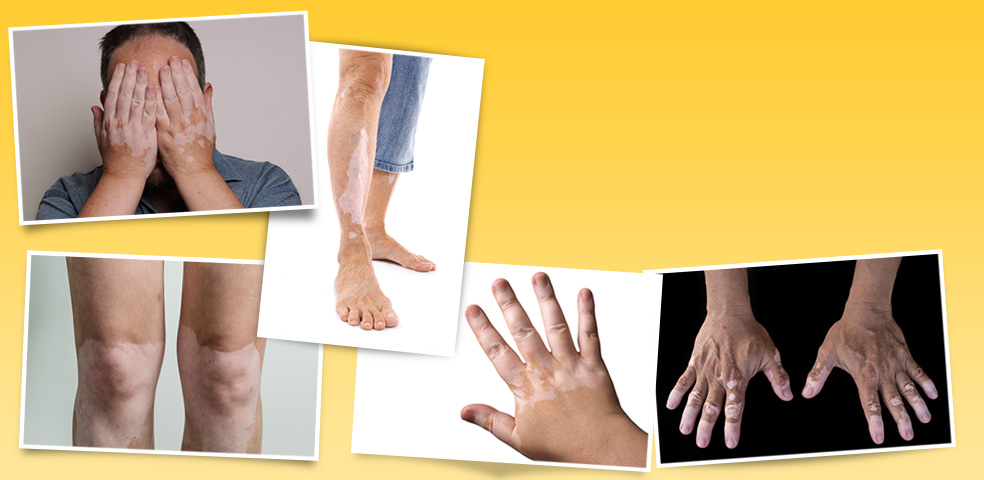 Hairline International clinic have best set of treatments and experienced doctors for Vitiligo and white spots in Bangalore. Consult us for best Vitiligo treatment.